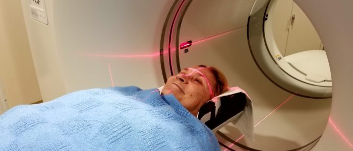 patient-getting-a-brain-pet-scan-nuclear-medicine--YA4U4KU